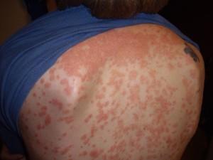 Симптомы вульгарного псориаза
