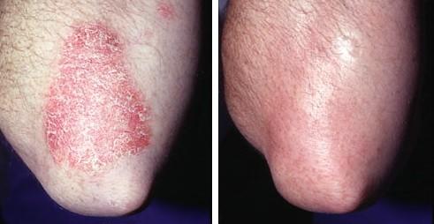 Псориатические бляшки вульгарный псориаз и его лечение