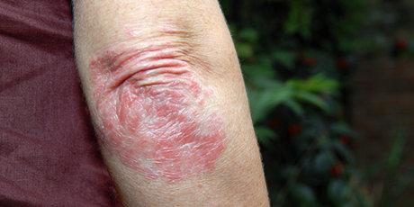 Лечение псориаза салициловой мазью
