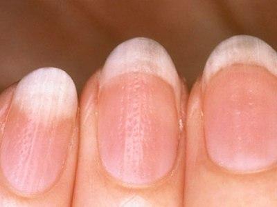 Ср-во от грибка ногтей народными средствами