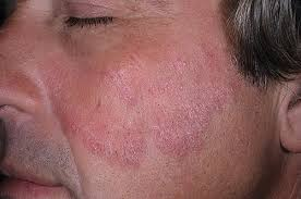 Псориаз на лице симптомы и лечение в домашних условиях